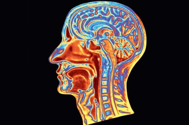 Contrast MRI Brain (Cemri)