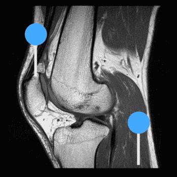MRI Knee Chandigarh