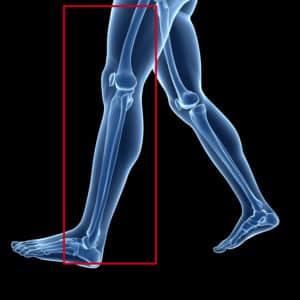 MRI Leg