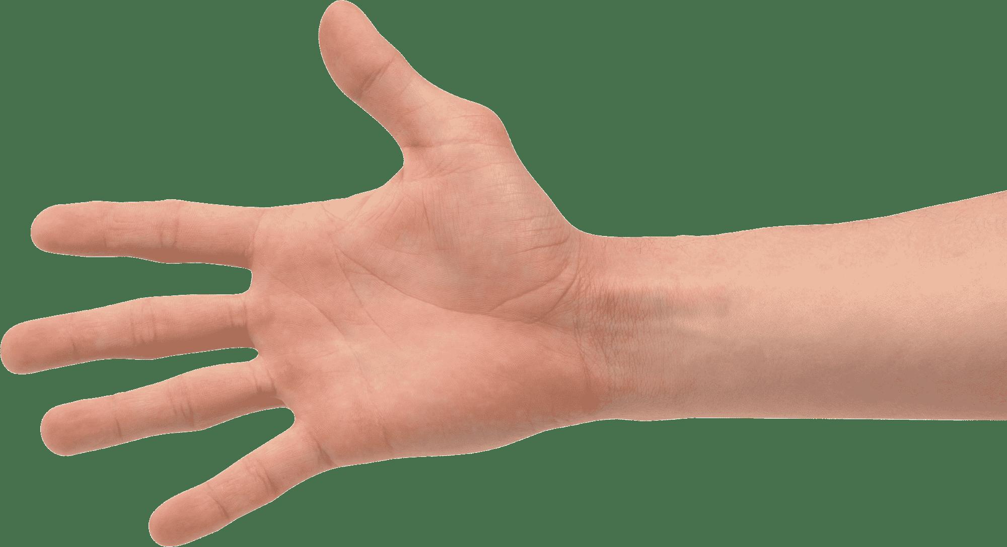 Contrast MRI Wrist