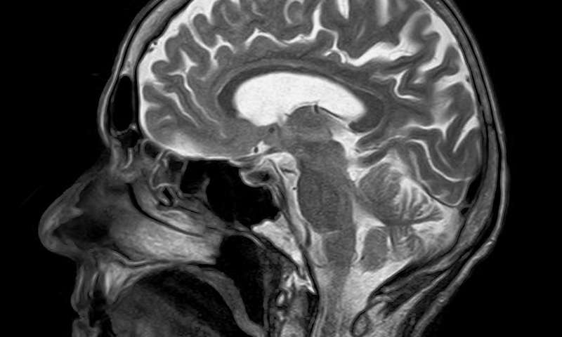 MRI Skull